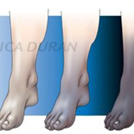 illustration of Progression of death of a limb (leg and foot) due to lack of blood flow; tissues become blue (cyanotic), then the tissue dies and it appears black. 