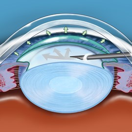 illustration of Illustration depicting the insertion of visioelastic material prior to AIOL placement.