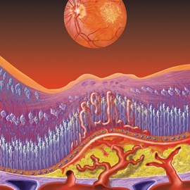 illustration of Conceptual illustration depicting infusion of blood vessels and the resulting retinal distortion in wet AMD.